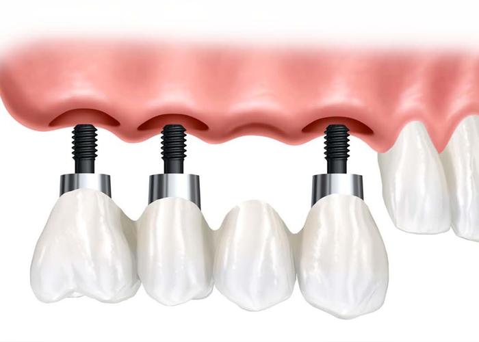 implantologia dental, implantologia dental cali, implantologia dental en cali, orthofami, ortofami, odontologia, odontologia cali, ortodoncia, ortodoncia cali, brackets, brackets cali, odontologo, odontologo cali, servicio odontologico, servicio odontologico cali, profilaxis, limpieza, limpieza dental, dientes, dientes cali, caries, valoracion gratis, valoracion gratis cali, ortodoncia niños, odontologia pediatrica, encias, encia, brackets adolescentes, brackes adultos, ortodoncia adultos, ortodoncia niños, higiene oral, ortodoncia lingual, ortopedia, retenedores, ortopedia cali, ortodoncia lingual cali, retenedores cali, clinica odontologica, clinica odontologica cali,